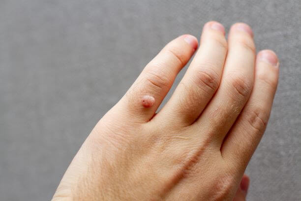 Harmless viral warts need prompt therapy